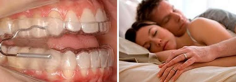 apneia-sono-odonto.jpg