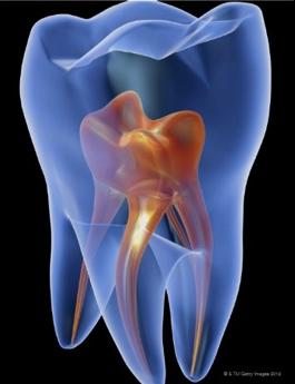 innovara-endodontia-regenarativa-endodontia-convencional.png