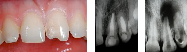 trauma-dental.jpg