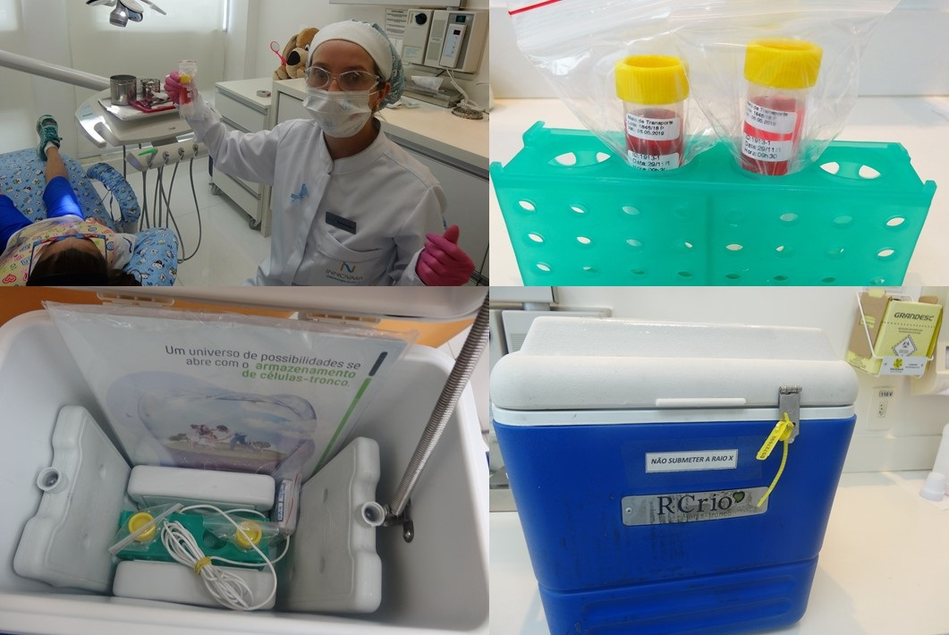Processo de coleta e armazenamento do dente de leite | INNOVARAKIDS e R-CRIO: parceria de sucesso!